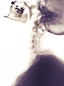 upper cervical, chiropractors, weight loss, chronic neck pain